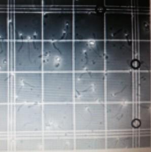 Spermler mikroskop altında sayılırken ...